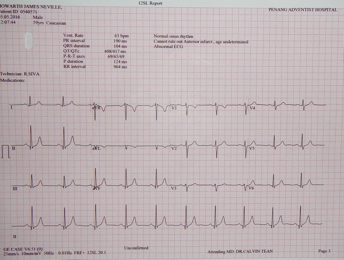 Never had an ECG before